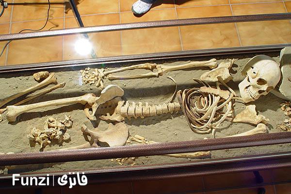 موزه ملی پزشکی | بهترین دیدنی های تهران